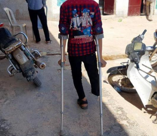 Syria Amputee Children Forced to Work as they Wait for Artificial Limbs