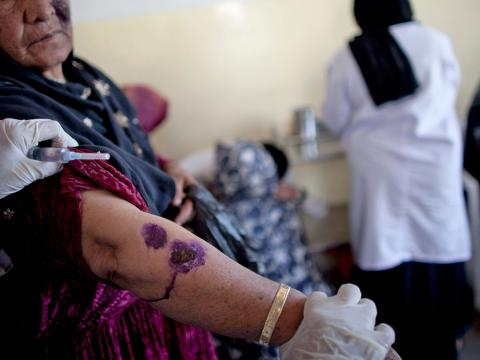 a woman shows signs of cl on her arm  getty images jpg?itok=Cl dgCG8.'